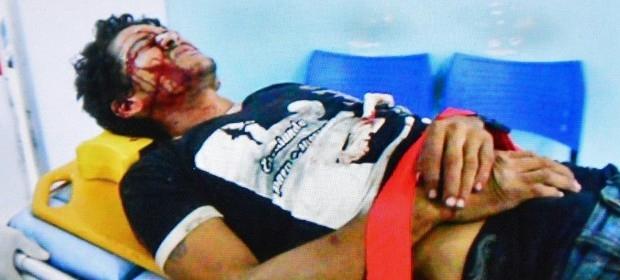 Alessandro Santos Carvalho é vitima de tiros e espancamento na Estrada Velha