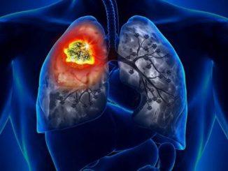 Mais de 1,5 milhão tem câncer de pulmão no mundo